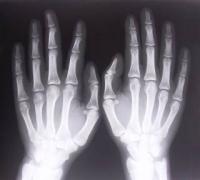 Bolest kostí
